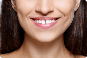 charleston orthodontist can braces fix gaps in teeth